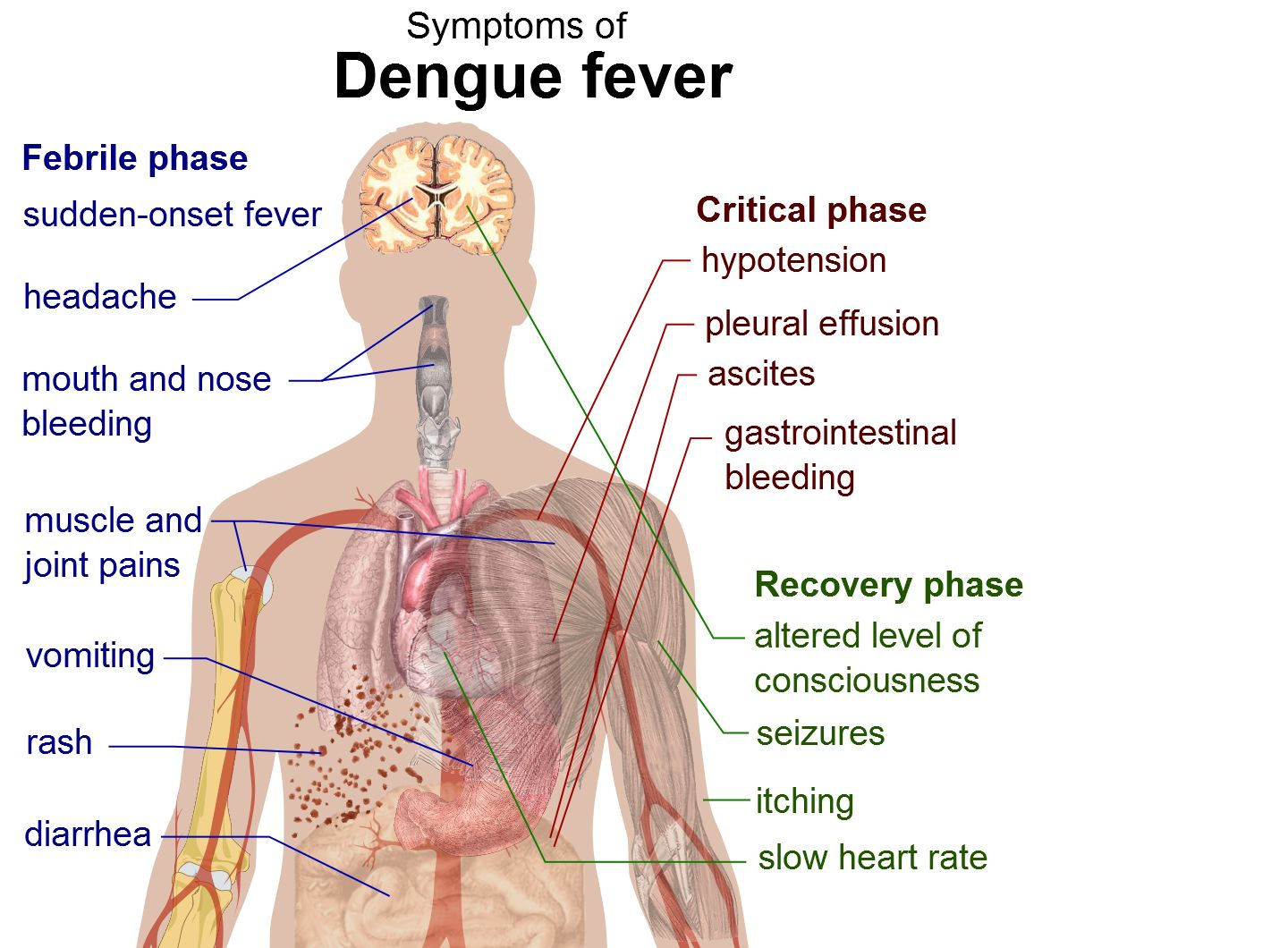 en academic ru pictures enwiki 68 Dengue fever symptoms svg
