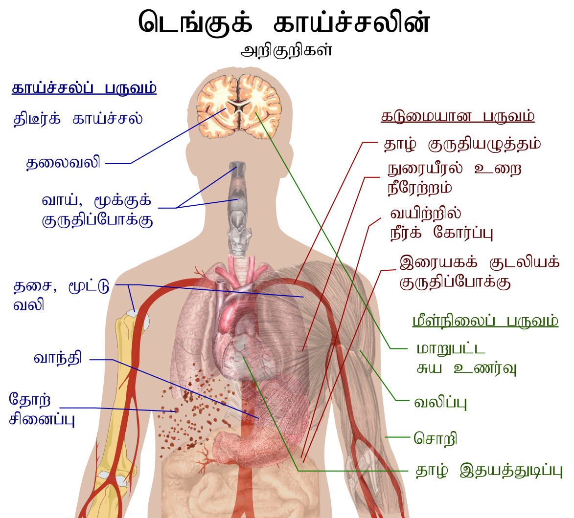 Dengue fever symptoms tamil